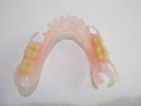 見た目を重視する方に 部分入れ歯|東京入れ歯研究所|メグミデンタルクリニック